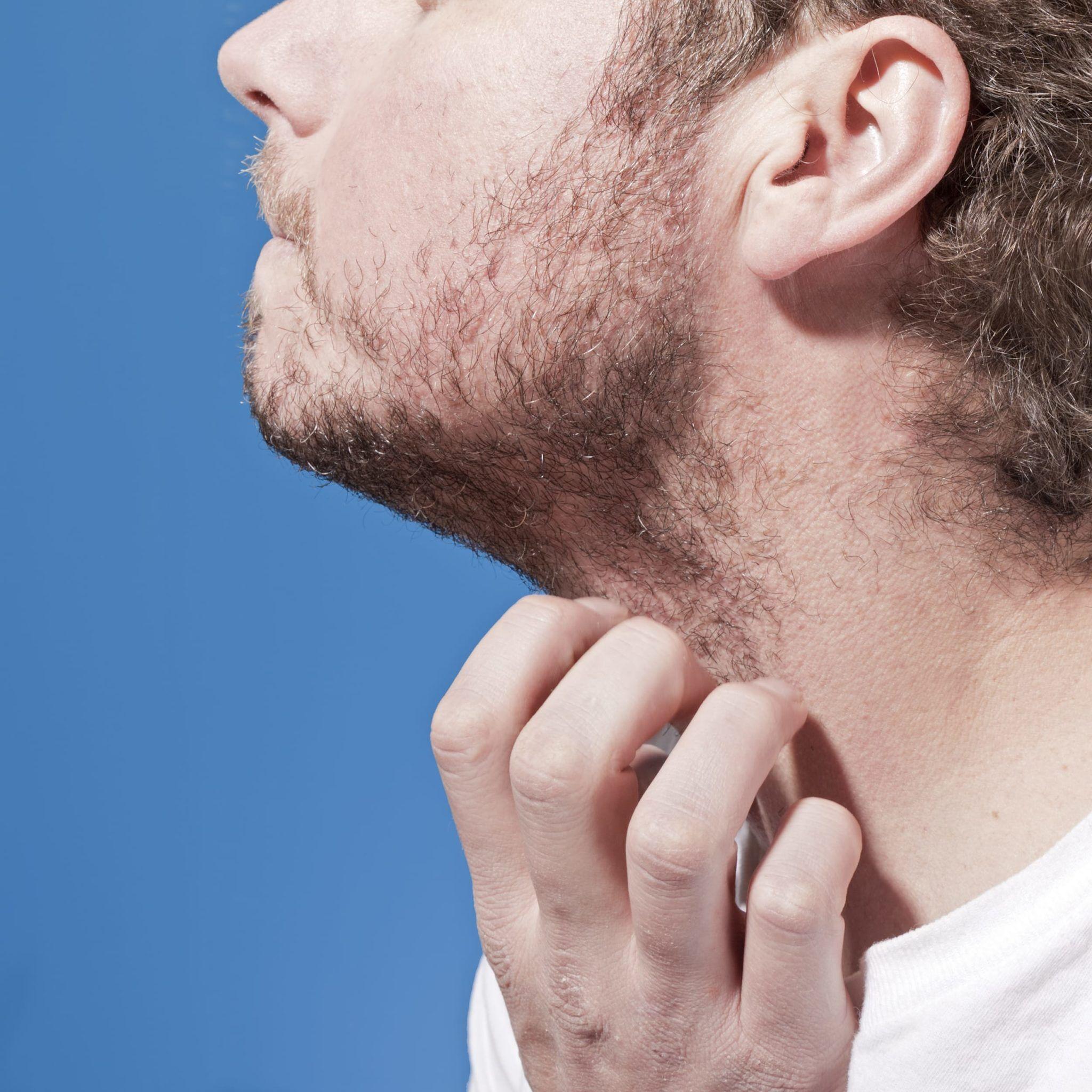 O após como irritada a barbear curar pele